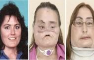 وفاة أول أمريكية خضعت لعملية زرع وجه